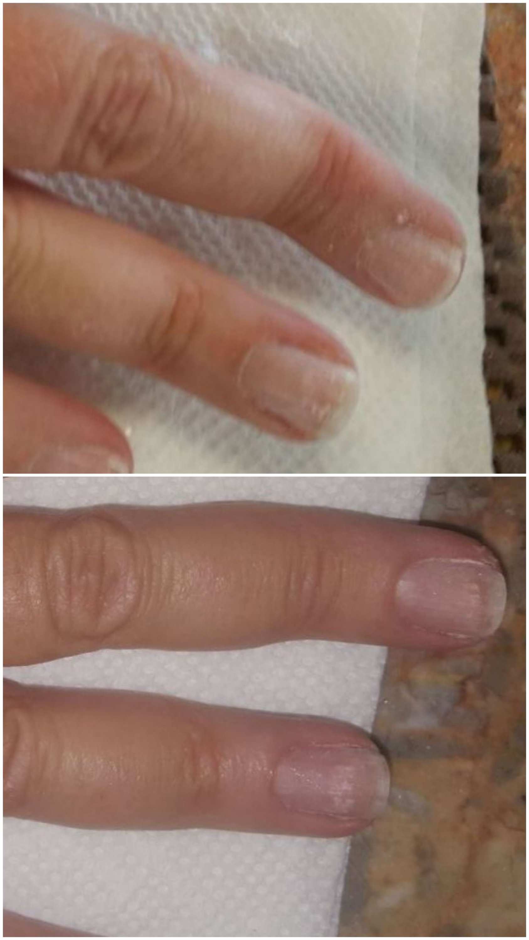how to fix your crooked fingers